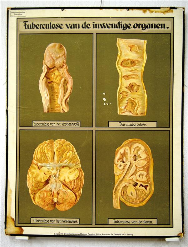 ( SCHOOLPLAAT ) Tuberculose van de inwendige organen