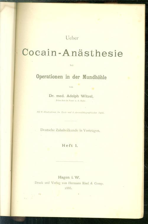 Ueber Cocain-Anästhesie bei Operationen in der Mundhöhle